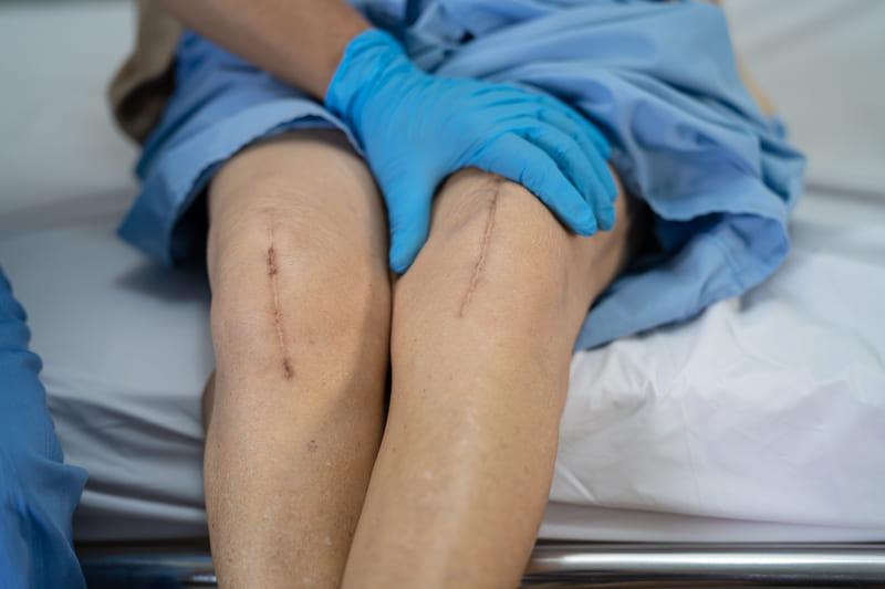 cicatrices patológicas